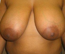 Manhattan Breast Reduction before 5